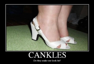 Ridicule Suffered by Women with Cankles
